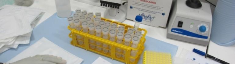 Medicació de càrrega viral a un hospital de Moçambic Font: Sarah-Eve Hammond