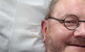 Les orelles són una part del cos que es fa servir molt en acupuntura