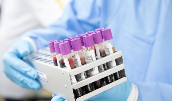 Els equips ja han realitzat 10.434 PCR i 3.920 han donat positiu.  Font: CC