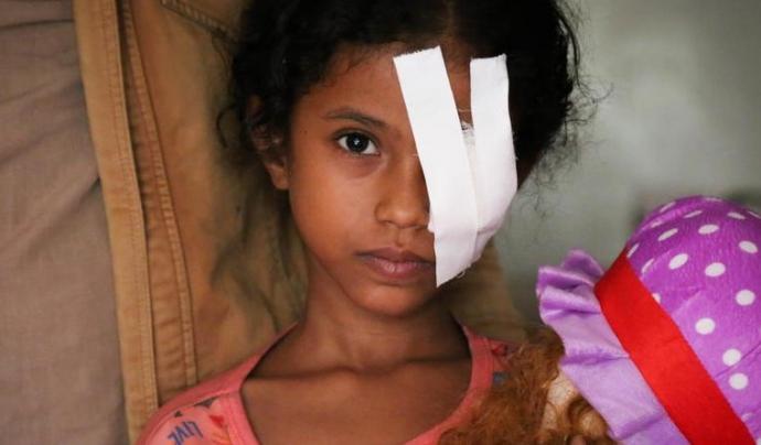 Noia jove amb una ferida a l'ull causada pel conflicte