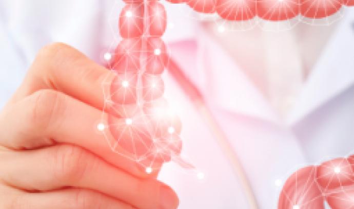 El càncer de còlon és un problema creixent en el món segons la OMS.