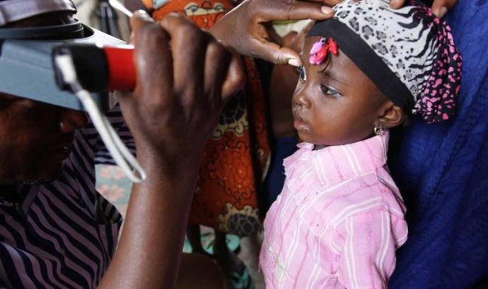 Les patologies oculars són un dels principals problemes de la població del Senegal. Font: Fundació Probitas